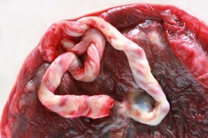 placenta: delayed cord clamping