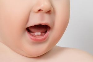 multiple teeth at the same time in a baby