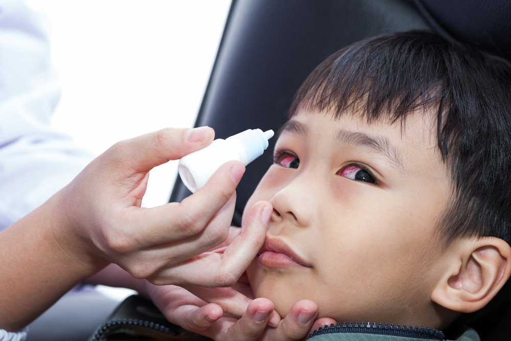 How to give your child eye drops