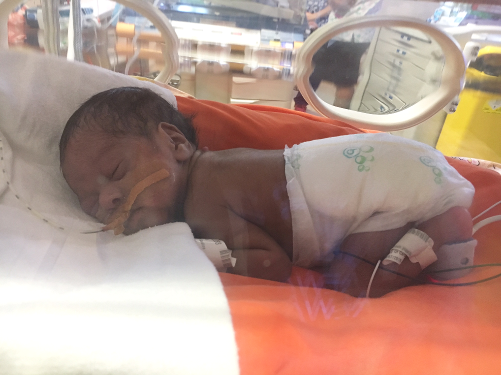 Nappies for premature babies