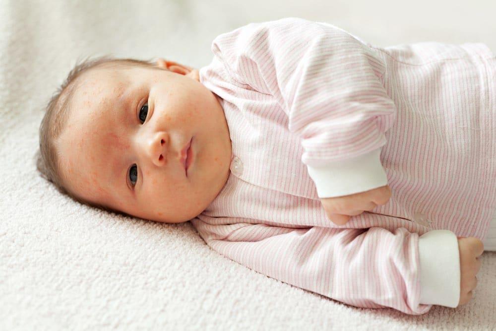 Common Baby Rashes